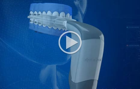 Acceldent Dr. Kevin McCoy Orthodontics Chicago IL